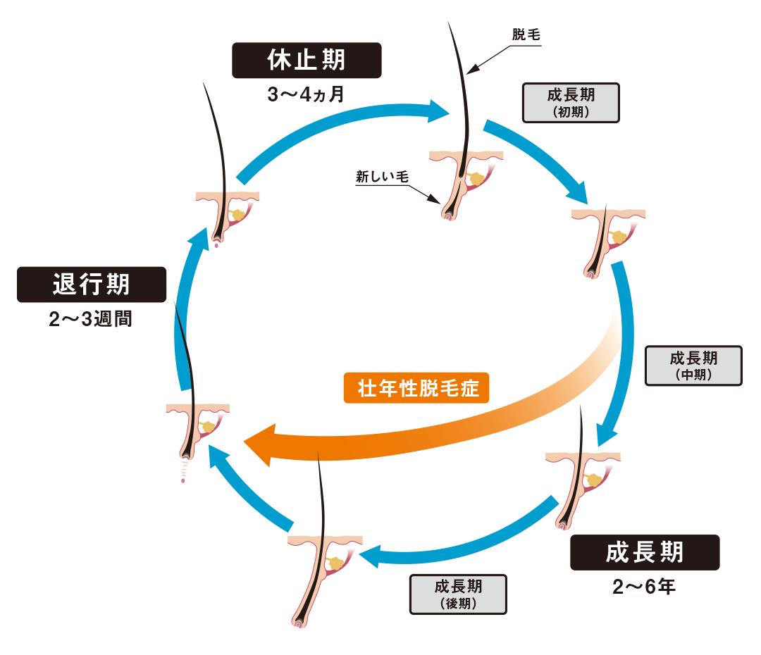 ヘアサイクルのAGAによる影響